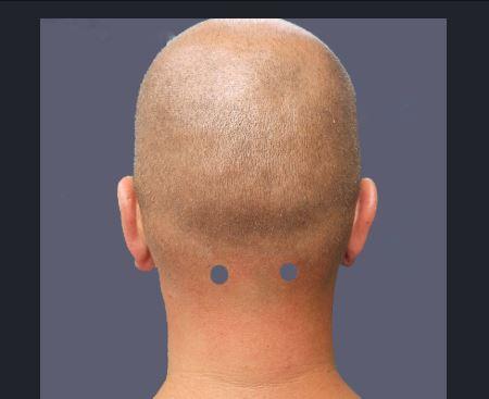 acupuntura para el cuello